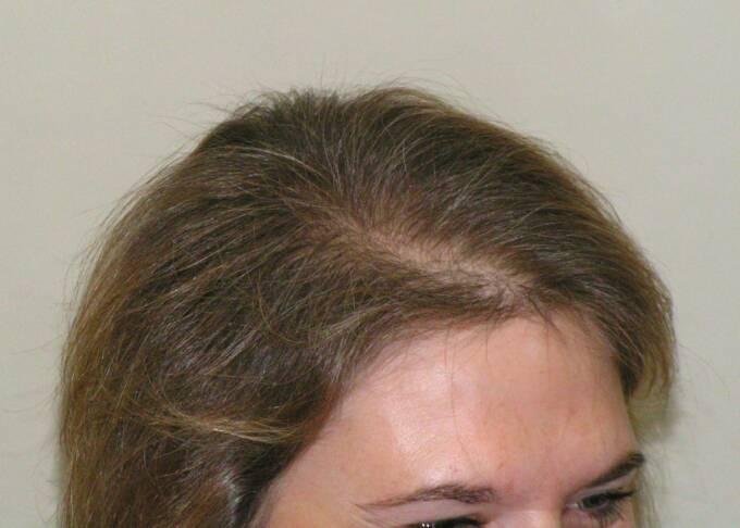 Female Hair Loss Success Photos